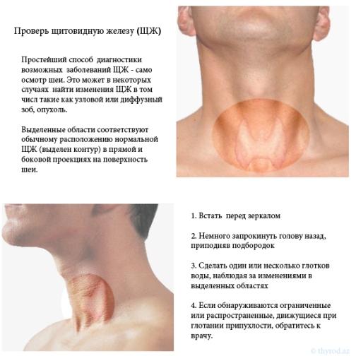Как проверить работу щитовидной железы в домашних  43